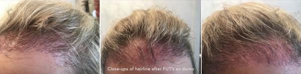 Risiken Haartransplantation - Beispiellfall Dr. Feriduni Frauen Repair - Reparatur, vor der Reparatur bei Dr. Feriduni